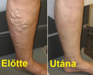 visszér radiális lézer hagyományos módszerek a láb visszerének kezelésére