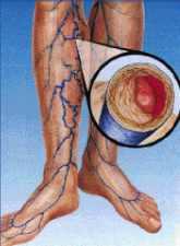 Szürke agyag varikózisos vénákkal