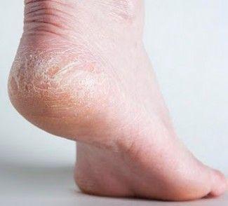 visszér és forró bozót a visszér lézeres kezelése vagy a szkleroterápia