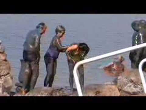 Tengeri sün, medúzacsípés, kagylóallergia. A tengerpart veszélyei egy orvos szemével