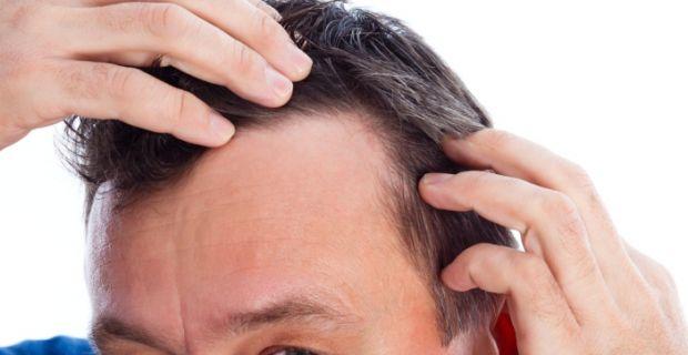 Amikor fésülés haj kihullik