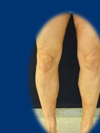 ortopéd harisnya visszér ár