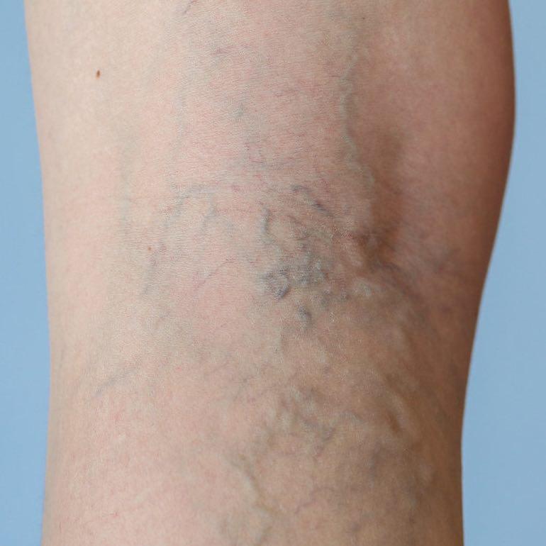 vékony bőr vagy visszér lézer az alsó végtagok varikózisának kezelésében