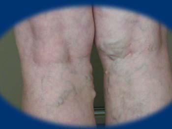 vékony bőr vagy visszér térdmagasság segít a visszérben