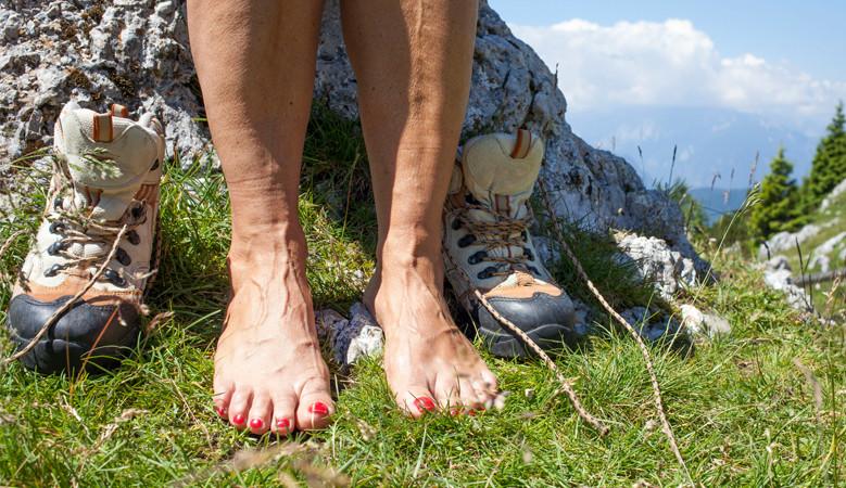 visszér a lábakon kék foltok