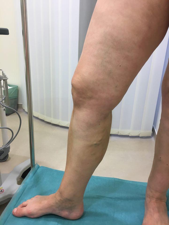 véraláfutás a visszeres műtét után