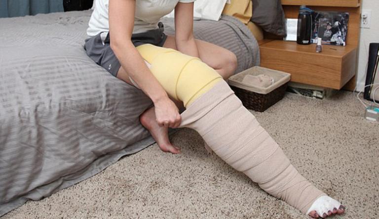 a visszér meggyógyul visszér a lábakon kezelés szkleroterápia ára