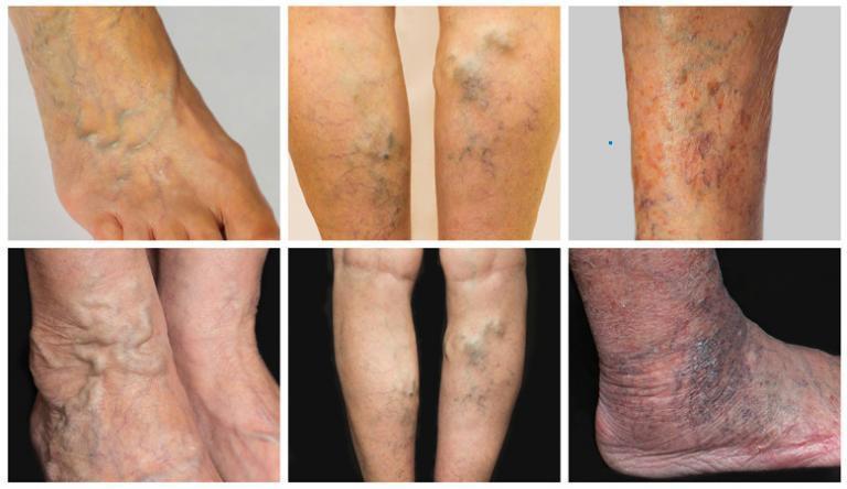 A visszér tünetei | Nehézlábérzés, lábdagadás, seprűvénák