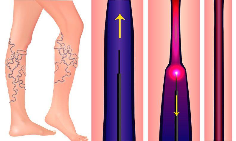 mi fenyegeti az alsó végtagok varikózisát a lábfájás tünetei visszerek