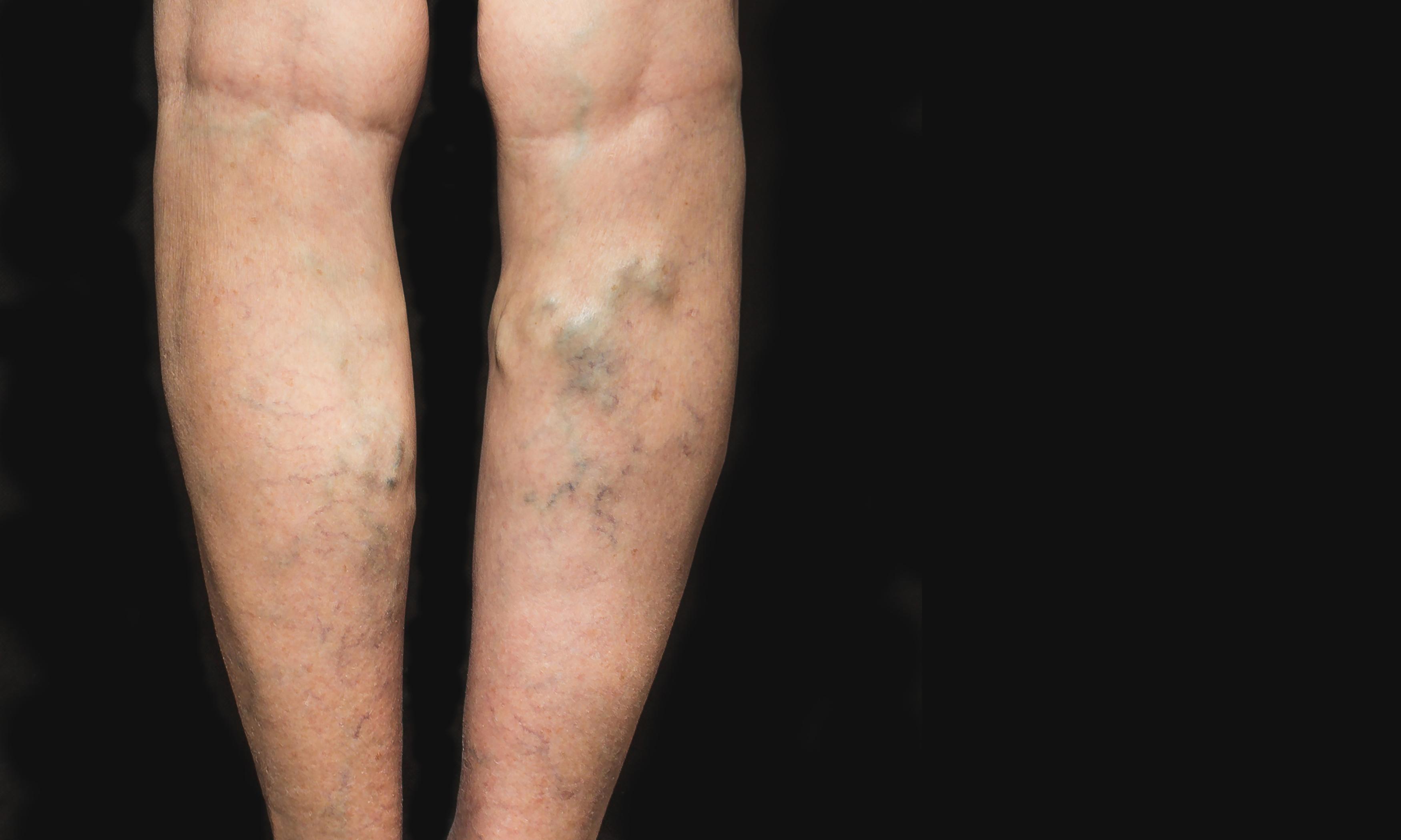 19 éves visszér a bőr a varikózus vénákkal változik