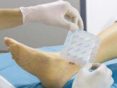 hogyan lehet helyesen megkötni a kötést a visszér ellen műtét utáni következmények a visszeres lábakon