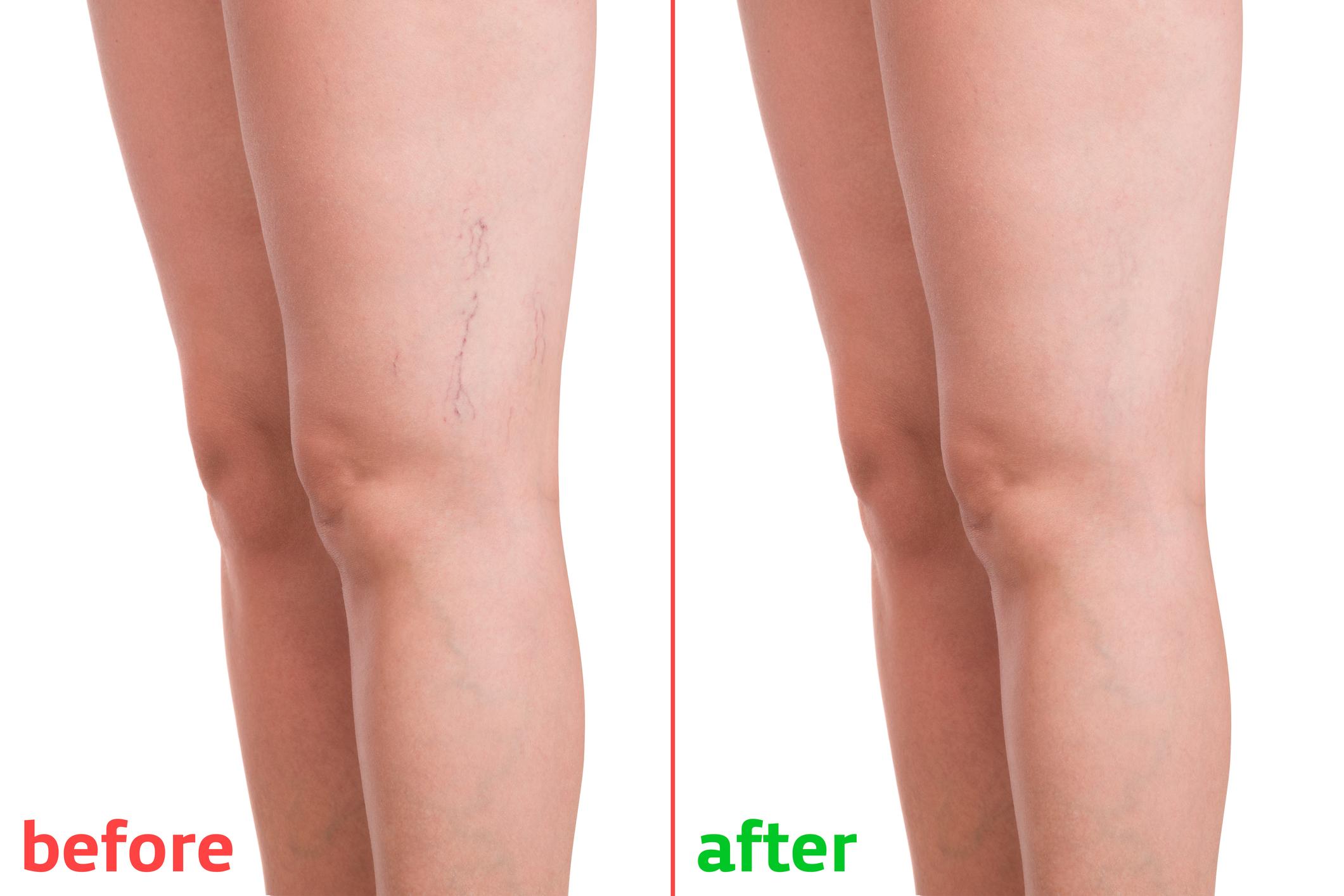 a lábakon végzett visszérműtét után gyakorlatok a varikózis a lábak otthon