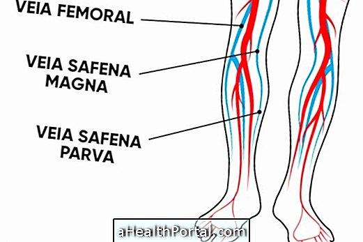 a varikózus vénák bizsergése a leghatékonyabb gyógymód a varikózisos lábakon