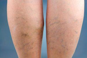 mit kell tennie, ha már visszeres krém a visszeres bőrre