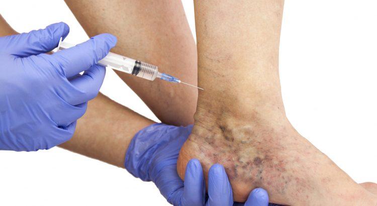 visszerek kezelése az emberek körében visszér sérülések