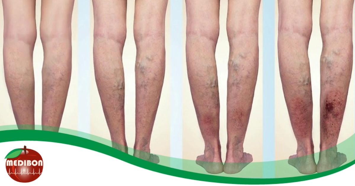 a varikózis megelőzése a lábakon