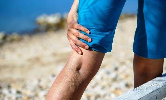 a lábak visszér, ahogy látszik visszerek a laparoszkópiában