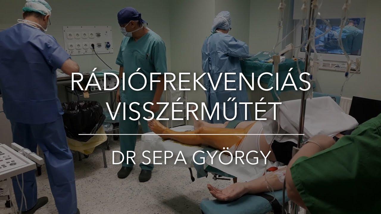 Lézeres visszérkezelés - és műtét, melyik a jobb?