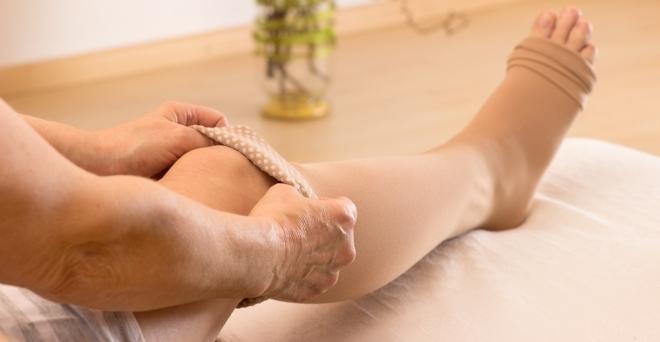 kompressziós harisnya visszér visszér és fájdalom járás közben