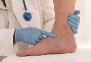 annál jobb a visszeres lábakat kezelni