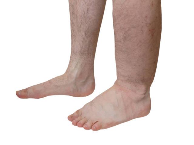 lehetséges-e szteroidokat szedni a visszér ellen