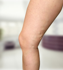 Visszérműtét utáni lábadozás hossza és menete - Ezekre kell figyelni