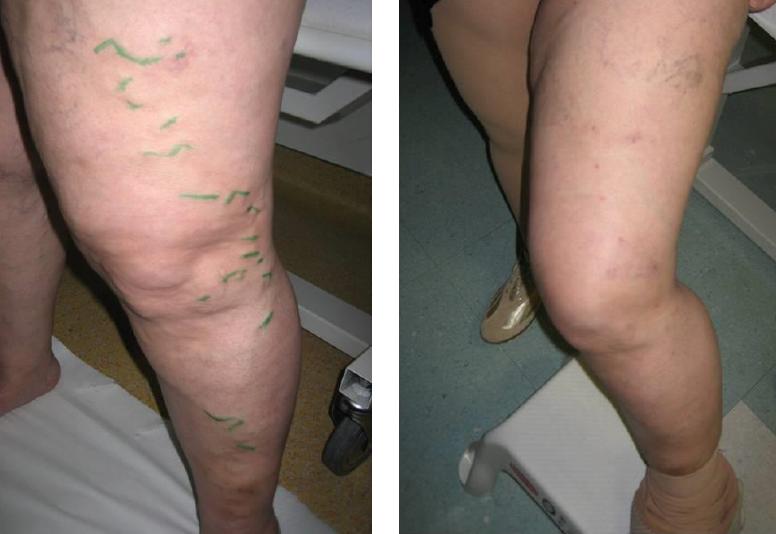 műtét a visszér eltávolítására fotó a lábak visszérgyulladásának súlyosbodása