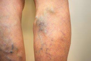 gyógyszerek visszér fotó miért visszér a bal lábon
