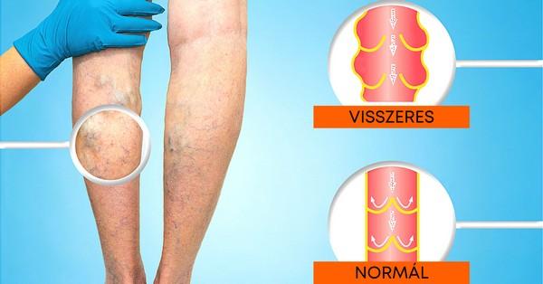 mutassa a visszér a varikózis jelei a lábakon