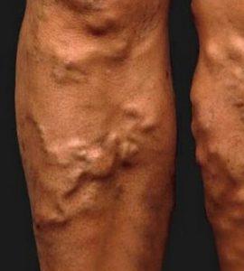 hogy a lábak megduzzadnak a visszérben