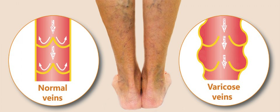 a lábak feketeek a visszerektől