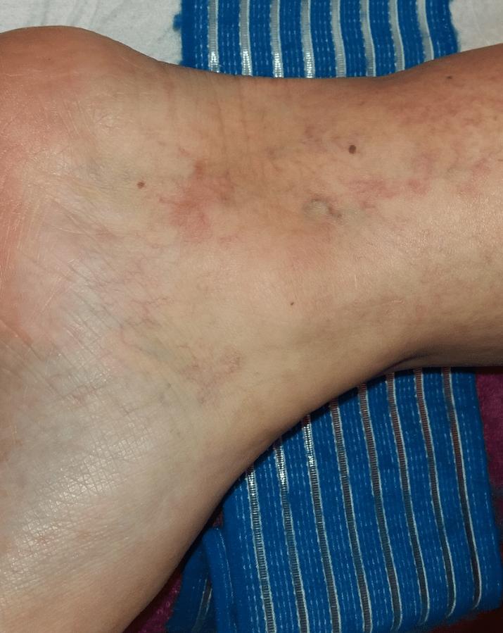 fotók a visszeres betegek lábáról duzzadt vénák a visszéren