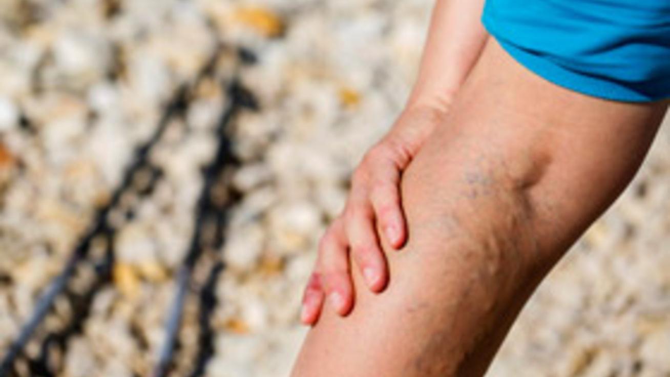 Visszérgyulladás Stock fotók, Visszérgyulladás Jogdíjmentes képek | Depositphotos®