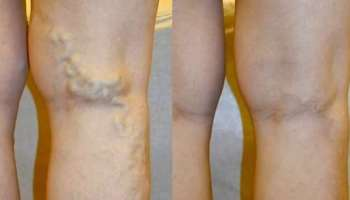 visszérműtét a lábakon lézeres áron harisnyanadrág visszér ellen