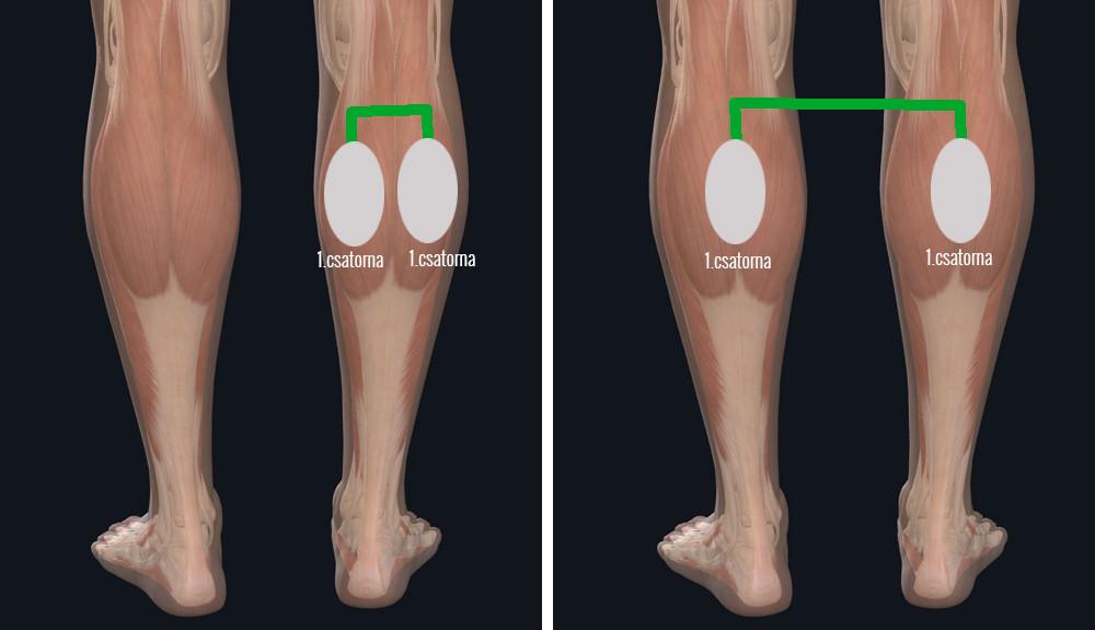 a lábak myostimulációja visszeres mit kell tudni a visszérről