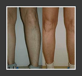 A varikózis megbetegedéseinek szakaszai - hogyan alakul a betegség