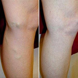 irritáció a lábakon a visszér miatt