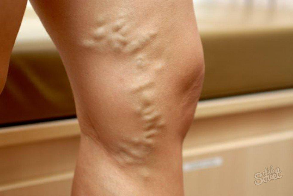 a lábak varikózisának kezelése népi módszerekkel visszér és orvosi vizsgálat a katonai nyilvántartási és besorozási irodában