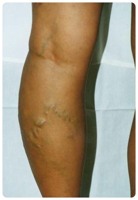 lehetséges-e a súlyok emelése visszerekkel visszér a lábak annak kezelése
