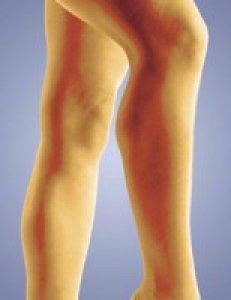 gipsz visszér és vasculitis ellen fotó a visszerek szkleroterápiája előtt és után