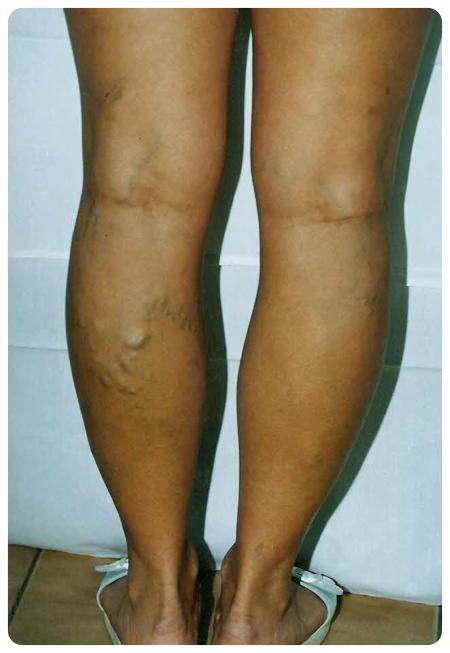 hogy a visszér műtét a lábakon video