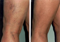 a korai visszerek kezelése a lábakon