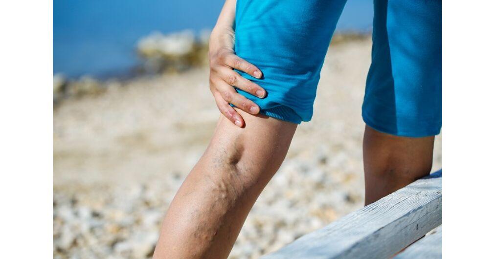 repedő vénák visszér mi a különbség a phlebitis és a visszér között