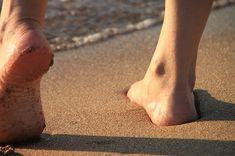 ödéma visszér kezelés népi gyógymódokkal mit kell tennie a varikózus ereket a lábán