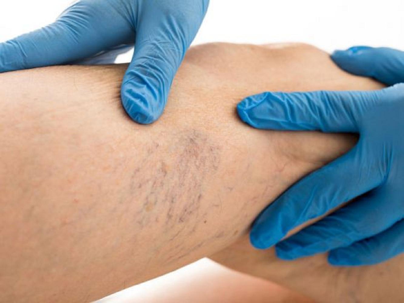 A visszér és a trombózis kezelése