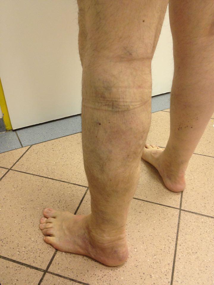 fotó a visszerek szkleroterápiája előtt és után egészségügyi minisztérium visszér