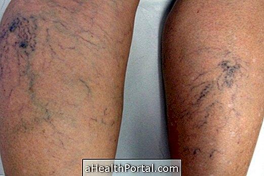 ajánlások a varikózis eltávolítása után a lábon