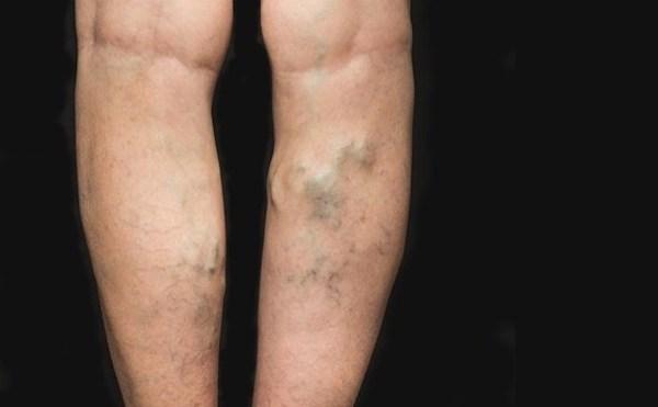 mi fenyegeti a visszereket a lábakon