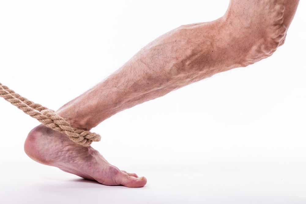 a lábak a visszér miatt nem voltak hajlandók visszér láb kemény