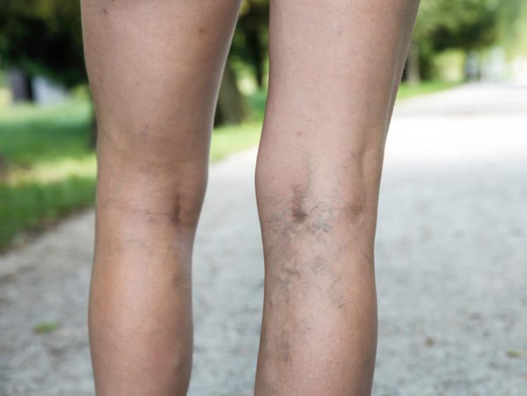 Ezt dörzsöld a visszeres lábra: hamarosan elhalványodnak majd a vérerek